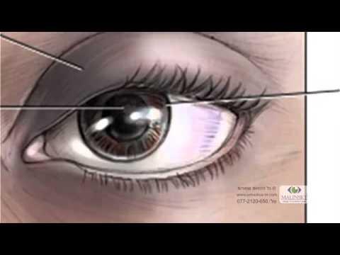 Глазное дно и глазное давление одно и тоже