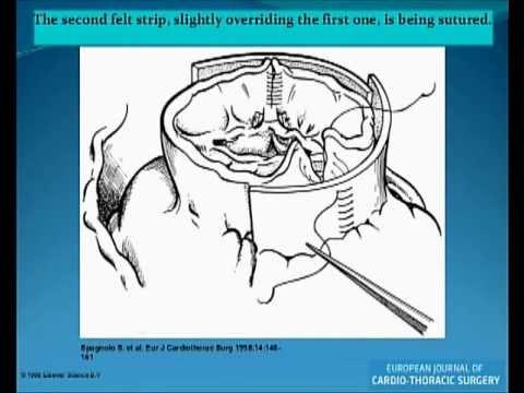LFK della colonna vertebrale cervicale