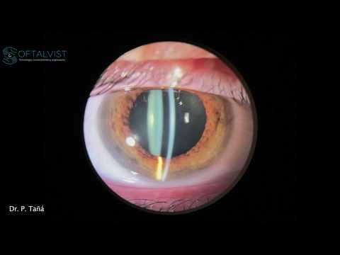 Schimbarea vederii cu toxoplasmoza
