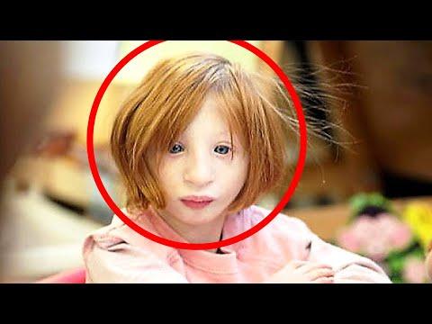 Nikdo si nechtěl adoptovat tuhle holčičku. O 19 let později vypadá úplně jinak...
