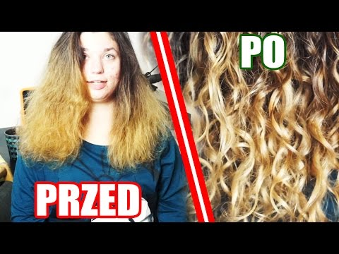 Lekarstwo na swędzenie i wypadanie włosów