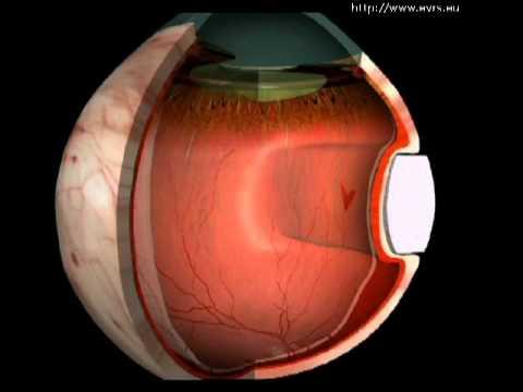 Medicament pentru imbunatatirea vederii