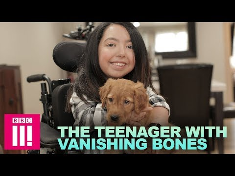 The Teenager with Vanishing Bones | Living Differently