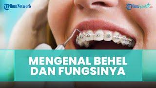 Mengenal Apa Itu Behel Gigi dan Fungsinya, Ini Penjelasan dari Dokter