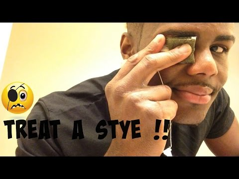 Video How To: treat a stye in your eye !! | Twhy Baby