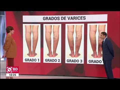 Remediu eficient pentru picioarele varicoase