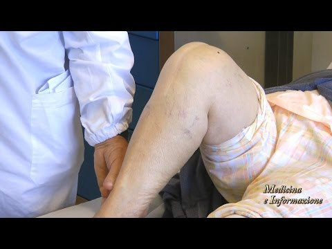 Danni ai dischi intervertebrali della colonna vertebrale cervicale