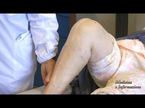 Segni e le conseguenze di osteoartrite