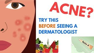 ACNE Treatments | Explained by Dermatologist