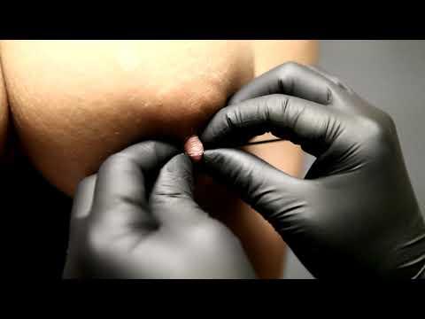 Ang breast surgery sa Udmurtia