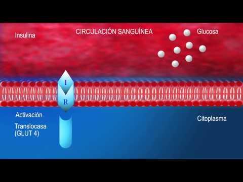 Cómo vivir con una bomba de insulina