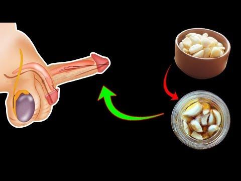 Parsley recipe for the treatment of prostatitis
