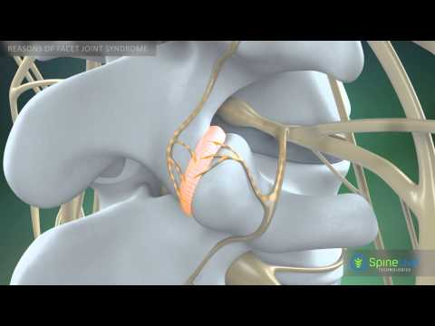Video Facet Joint Syndrome Reasons