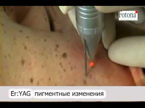 Медицинские препараты пигментных пятен на лице