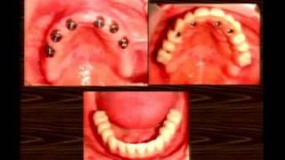 Casos Clínicos De Prótese Total Convencional E Prótese Total Fixa Sobre Implante Tipo Protocolo