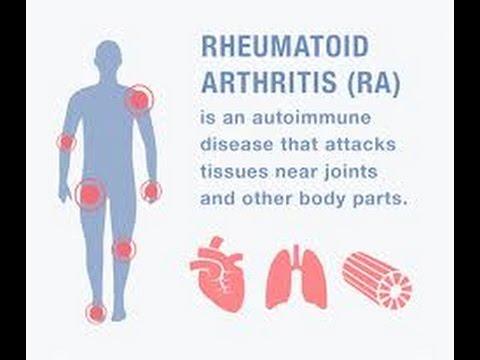 Térdízületi tabletták artrózisa vagy injekciós kezelés