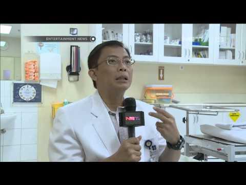 Video Penjelasan Dokter Syaraf tentang penyakit ALS