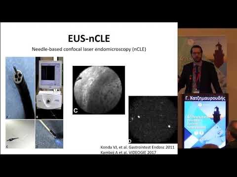 Γ. Χατζημαυρουδής - Ψευδοκύστεις και κυστικοί όγκοι παγκρέατος - Διαγνωστική προσέγγιση, ο ρόλος της ενδοσκόπησης