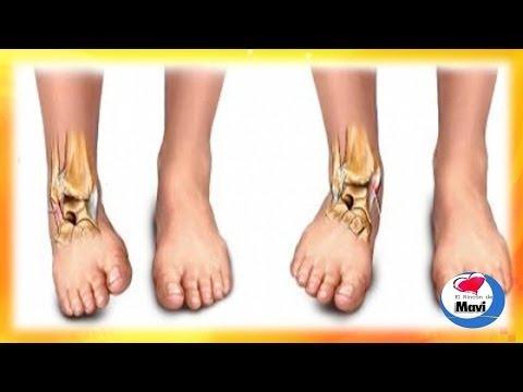 El medio de la lucha contra el hongo en la piel de los pies
