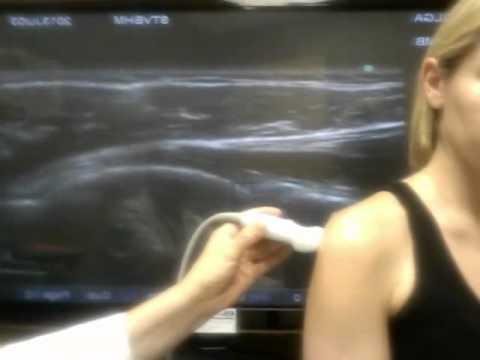 Боли в грудном отделе спины после падения