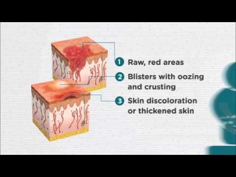 Eczema e persona di una fotografia