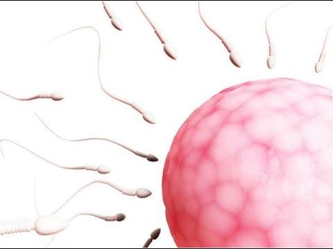 Adenoma prostatico Krasnodar - La rimozione di calcificazione della prostata