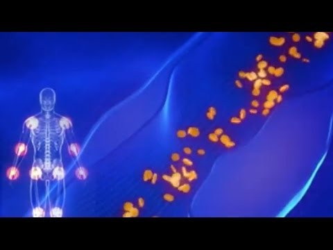 Video Chronic Inflammation:  The Root Cause of a Multitude of Diseases