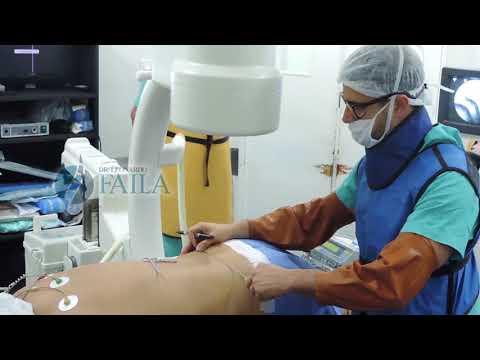 Barro envuelve con osteocondrosis