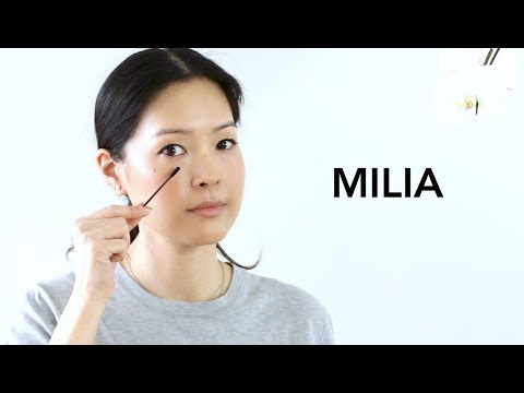 How To Get Rid of Milia at Home | How to Remove White Bumps