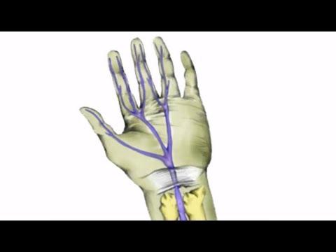 Hogyan lehet meghatározni a csípőízület osteochondrosisát