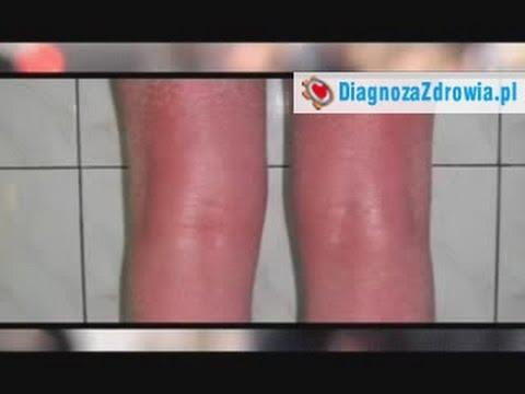 Atopowe zapalenie skóry niemowląt formularz