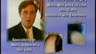 Hair Restoration Commercial