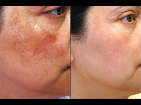 Mesotherapy facial pigmentation mula sa mga review