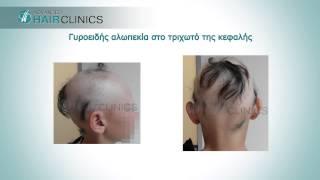 Γυροειδής Αλωπεκία (Alopecia Areata)  Θεραπεία & Αντιμετώπιση