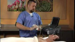 Ultrasound Guided Stellate Ganglion Block   SonoSite
