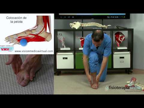 Artroza articulației umărului de 2-3 grade