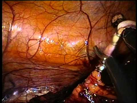 Nephrectomy - Laparoscopic Endoscopic Single-Site Surgery (LESS)