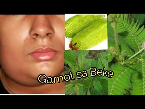 Hindi pangkaraniwang mga parasito insect