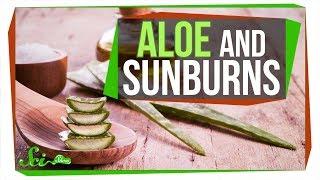 Does Aloe Really Treat a Sunburn? - Video Youtube
