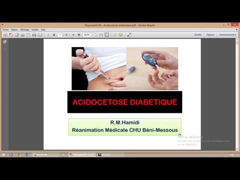 Ophtalmologiste rétinopathie diabétique