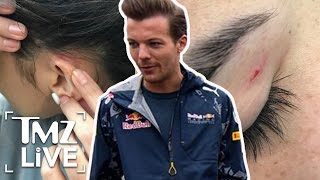 Louis Tomlinson Airport Fight Victim Speaks Out | TMZ Live