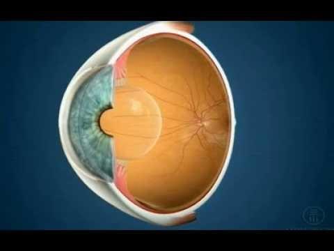 6 dioptrii acuitatea vizuală
