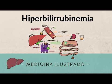 Distonía vegetativa de tipo hipertensiva ICD 10