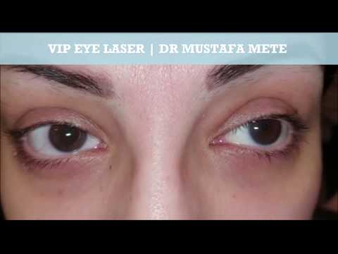 Permanent Eye Color Change Turkey - смотреть онлайн на Hah Life