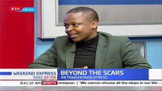 Meet MC Elias Ngotho who went through excruciating pain; led to amputation of toe | BEYOND THE SCARS