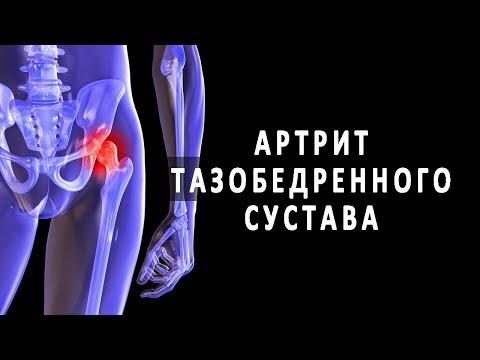 Популярно об артрите тазобедренного сустава
