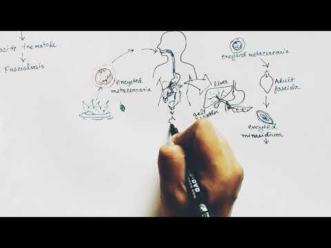 Hogyan lehet gyorsan megszabadulni a parazitatablettáktól