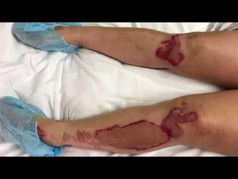 Eczema это