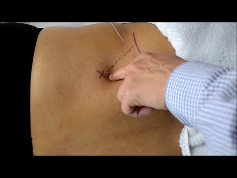 Video Orthopedic Acupuncture: Quadratus Lumborum Strain