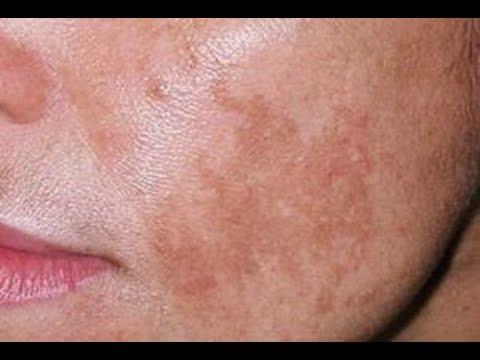 Чем можно закрасить пигментные пятна на лице